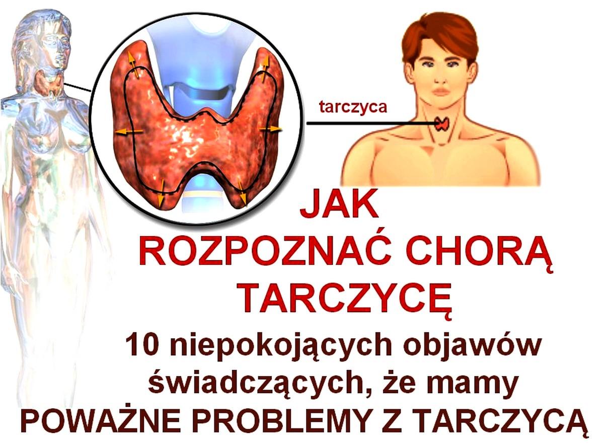 ciekawostkiozdrowiu.pl-jak rozpoznać chorą tarczycę